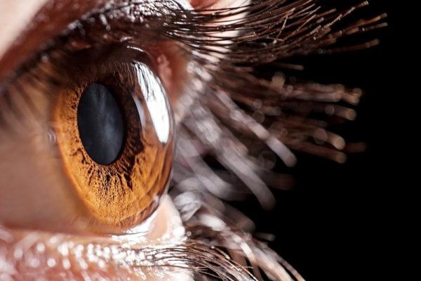 Scratched cornea